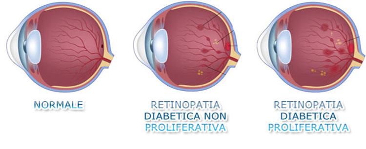 Clomid e problemi alla vista